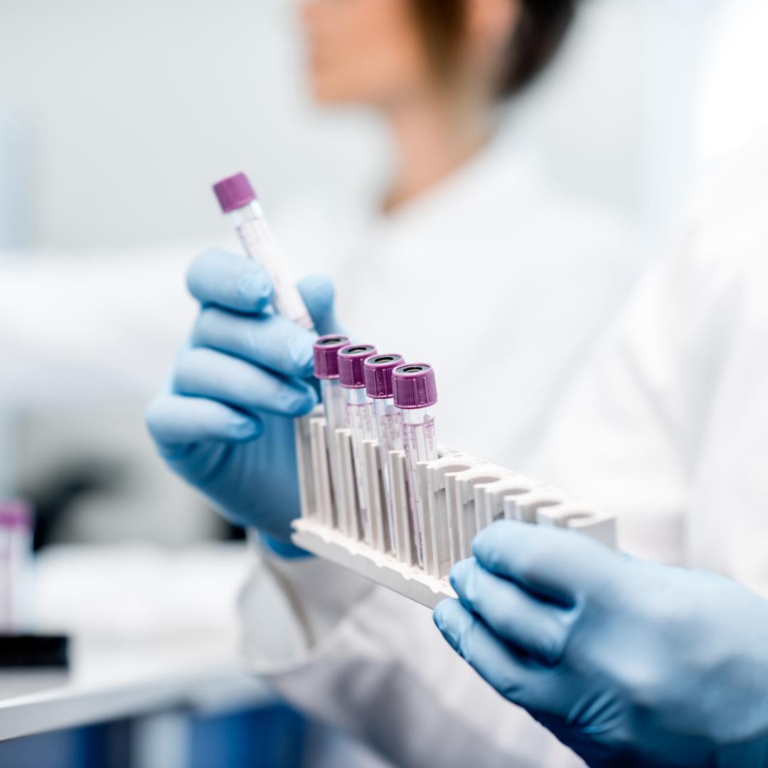 Laboratory Analysers Australia